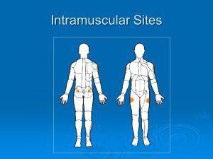 Intramuscular spots to inject testosterone