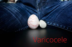 testicle shrinkage varicocele disease 300x199