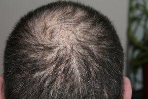 stress is main factor behind hair loss 300x200